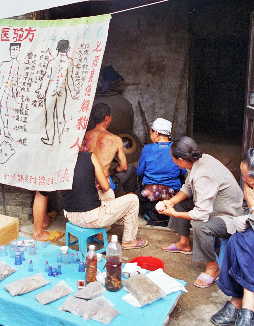 cupping Chong'an Market Chong'an Market 重按市场: Guizhou 贵州省