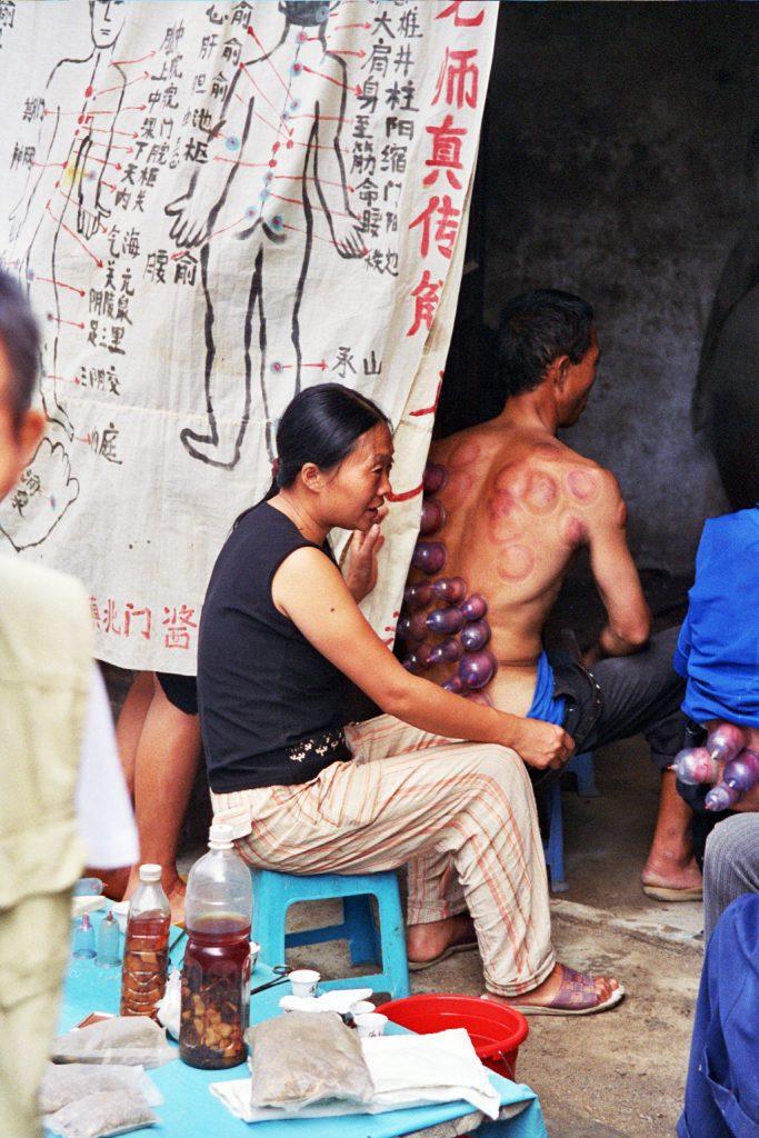 Cupping: China's Massage Chong'an Market Guizhou