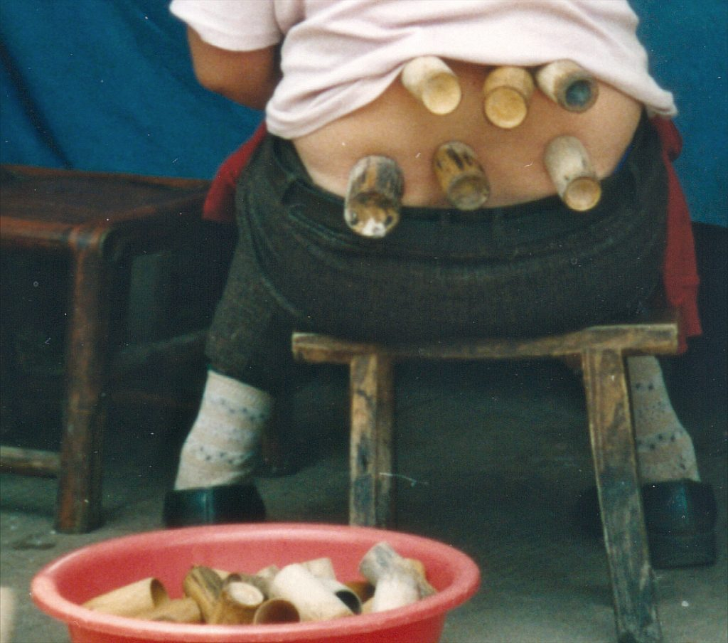 Cupping in Guiyang Central Market 2003